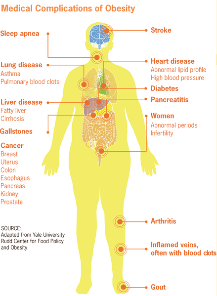 439px-Medical_complications_of_obesity