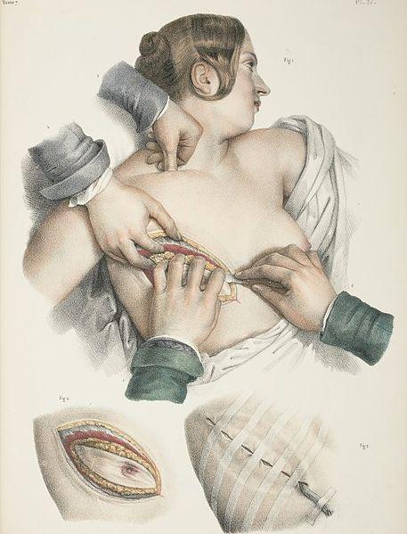 Beskrivning av mastektomi från en tyd då man inte tyckte att det där med handskar var så jätteviktigt