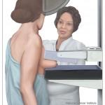 Nackdelarna med cancerscreening